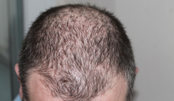 Hair Transplants Explained